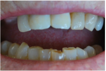 Temporary dental crown - AKA Provisional Crowns