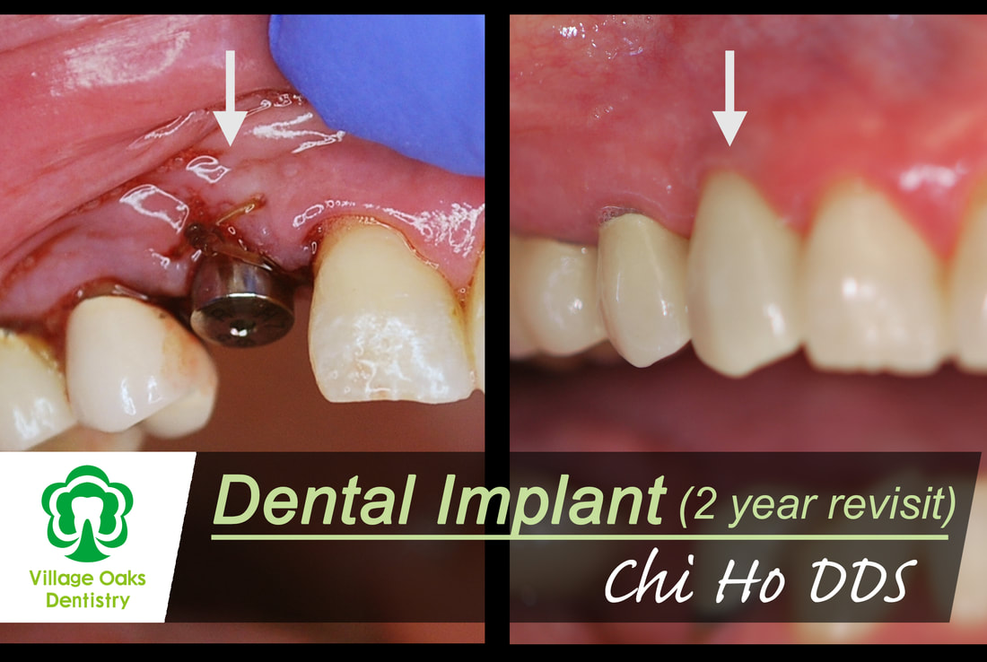 Dental Implant Case
